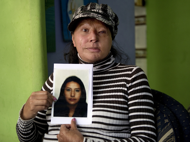 Maria Cuervo, 41, poses at her home in Bogota March 5 with a photo of herself before a stranger threw acid at her face in 2004.
