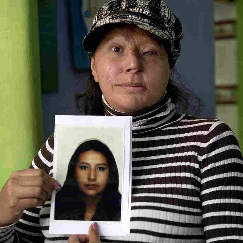 Acid Attacks A Rising Menace For Colombian Women