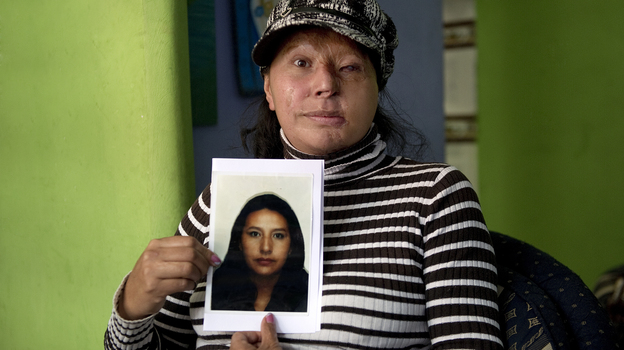 Maria Cuervo, 41, poses at her home in Bogota March 5 with a photo of herself before a stranger threw acid at her face in 2004. (AFP/Getty Images)