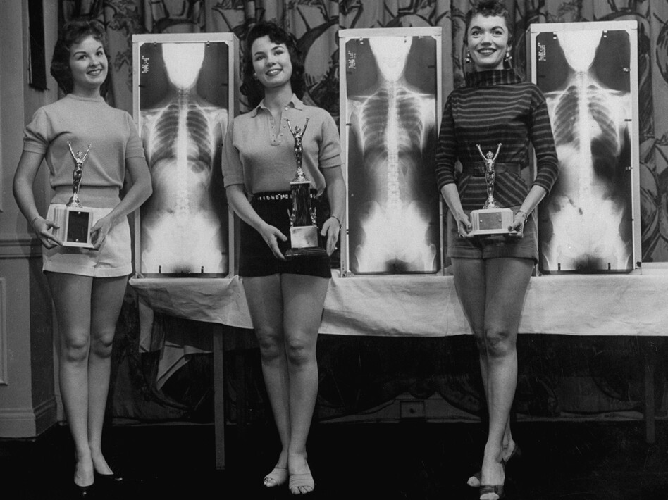 Contestants Marianne Baba (left), Lois Conway and Ruth Swenson stand next to plates of their X-Rays during a chiropractor-judged beauty contest.