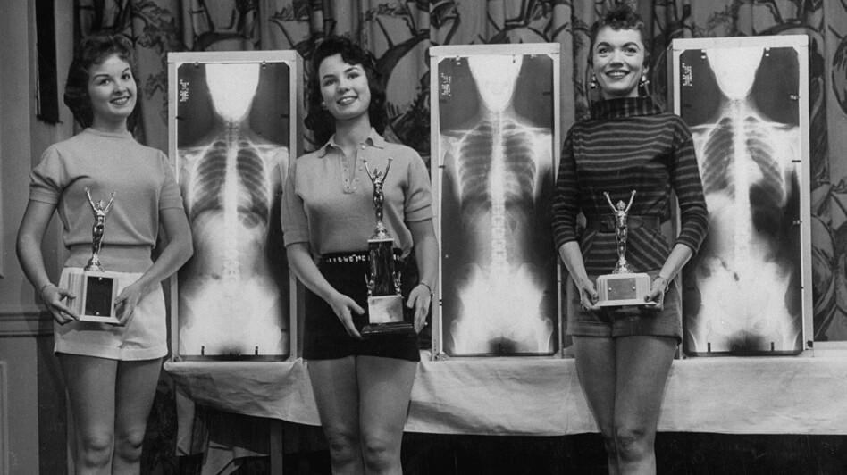 Contestants Marianne Baba (left), Lois Conway and Ruth Swenson stand next to plates of their X-Rays during a chiropractor-judged beauty contest. (Time )