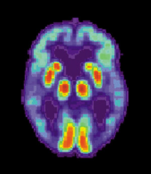 A PET scan of the brain of a person with Alzheime