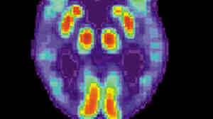 A PET scan of the brain of a person with Alzheimer's disease.