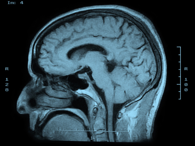 Researchers are using MRI scans to learn more about the brains of people with extraordinary memory.
