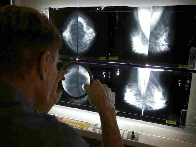 Radiologist Gerald Iba checks mammograms at The Elizabeth Center for Cancer Detection in Los Angeles in May 2010.
