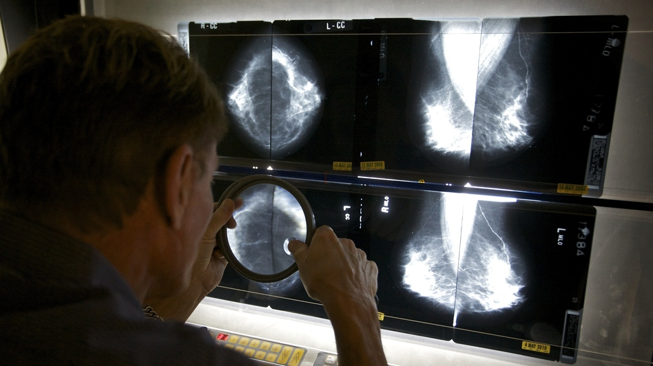 Radiologist Gerald Iba checks mammograms at The Elizabeth Center for Cancer Detection in Los Angeles in May 2010. (AP)