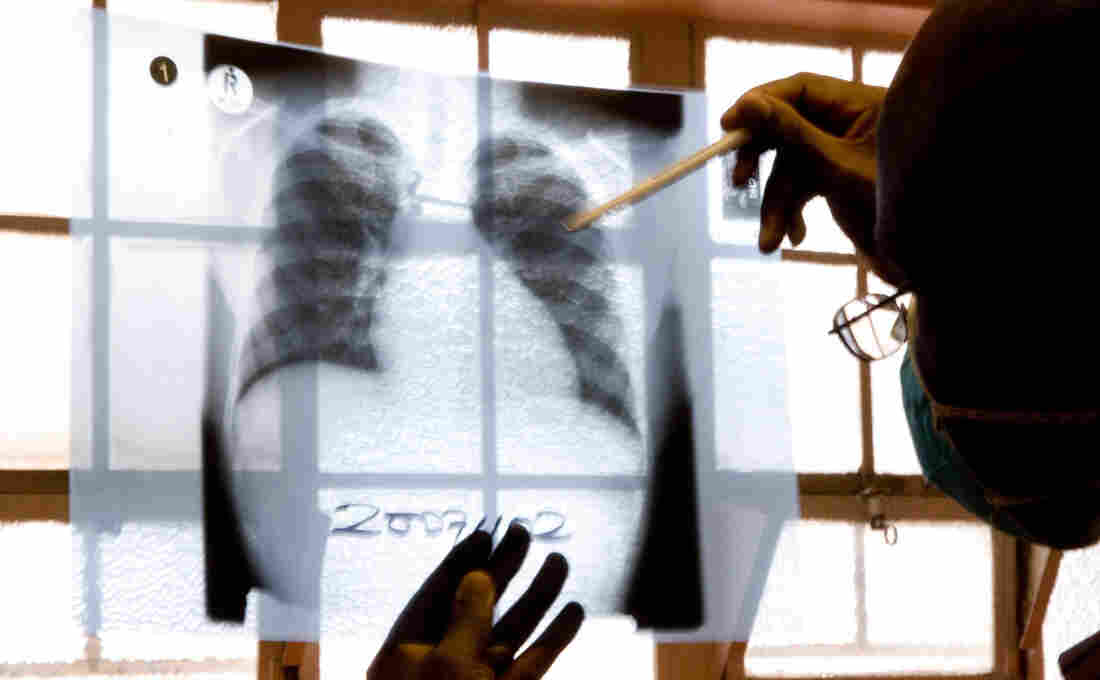 A doctor examines chest X-rays at a tuberculosis clinic in Gugulethu, Cape Town, South Africa in late 2007. The number of TB cases that don't respond to both first- and second-line medications is rising worldwide.