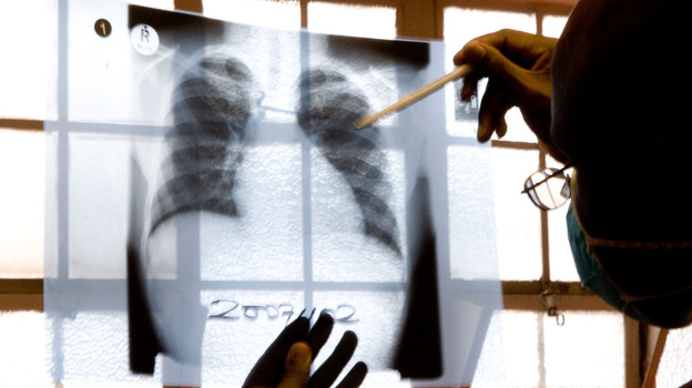 A doctor examines chest X-rays at a tuberculosis clinic in Gugulethu, Cape Town, South Africa in late 2007. The number of TB cases that don't respond to both first- and second-line medications is rising worldwide. (AP)