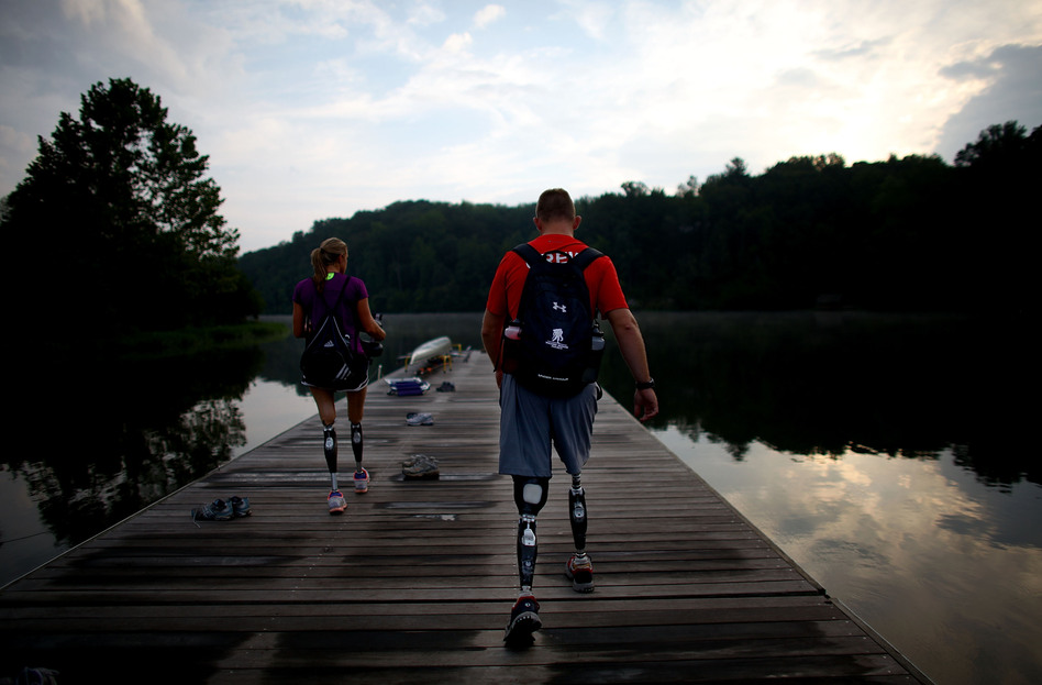 Masters was born with disfigured legs that were later amputated.  (NPR)