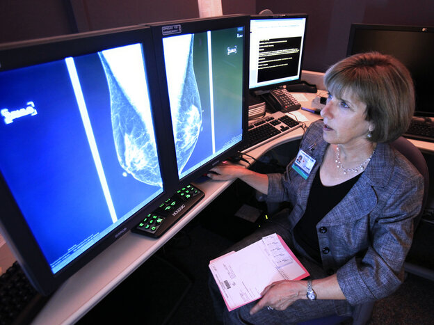 Dr. Karen Lindsfor, a radiologist at the University of California, Davis, Medical Center, reads a mammogram in Sacramento, Calif.