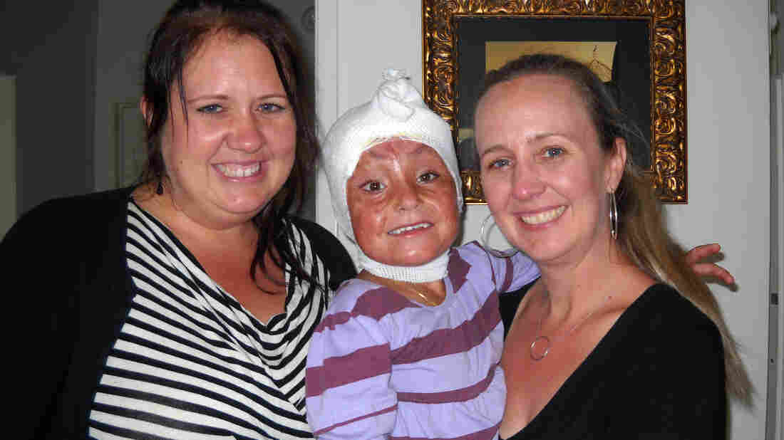 Arefa with her host family, sisters Jami Valentine (left) and Staci Freeman. Doctors in the U.S. have been treating Arefa's third-degree burns, and also performed skin-graft surgery for the top of her head. Each morning still requires a fresh dressing.