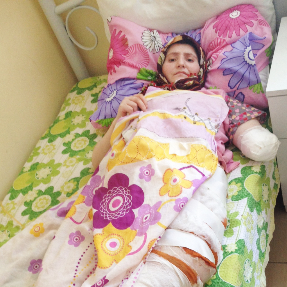 This 24-year-old Syrian woman from Homs was evacuated through the sewer system -- which resulted in badly infected wounds -- to a rehabilitation center in southern Turkey. She has had several surgeries to her abdomen and leg; her left arm was amputated.