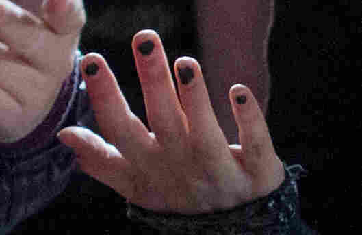 Nail close-up showing ragged manicure