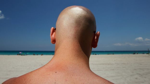 Stefano Amabili walks under the sun in Miami Beach, Florida, in May. The Center for Disease Control and Prevention has found that more people are using sunscreen and protecting themselves from the sun's rays. (Getty Images)