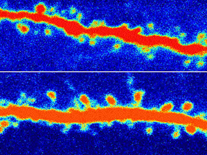 A rat neuron before (top) and after (bottom) ketamine treatment.  The increased number of orange nodes are restored connections in the rat's brain.