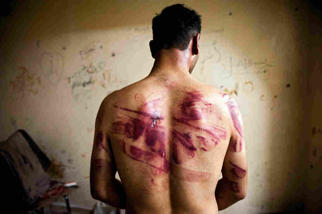 A Syrian civilian shows marks of torture after his release from regime forces in the Bustan Pasha neighborhood of Aleppo, Aug. 23.