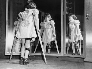 Many people infected with polio don't show any symptoms. Some become temporarily paralyzed; for others, it's permanent. In 1952, the polio epidemic reached a peak in the U.S.: almost 58,000 reported cases and more than 3,000 deaths.