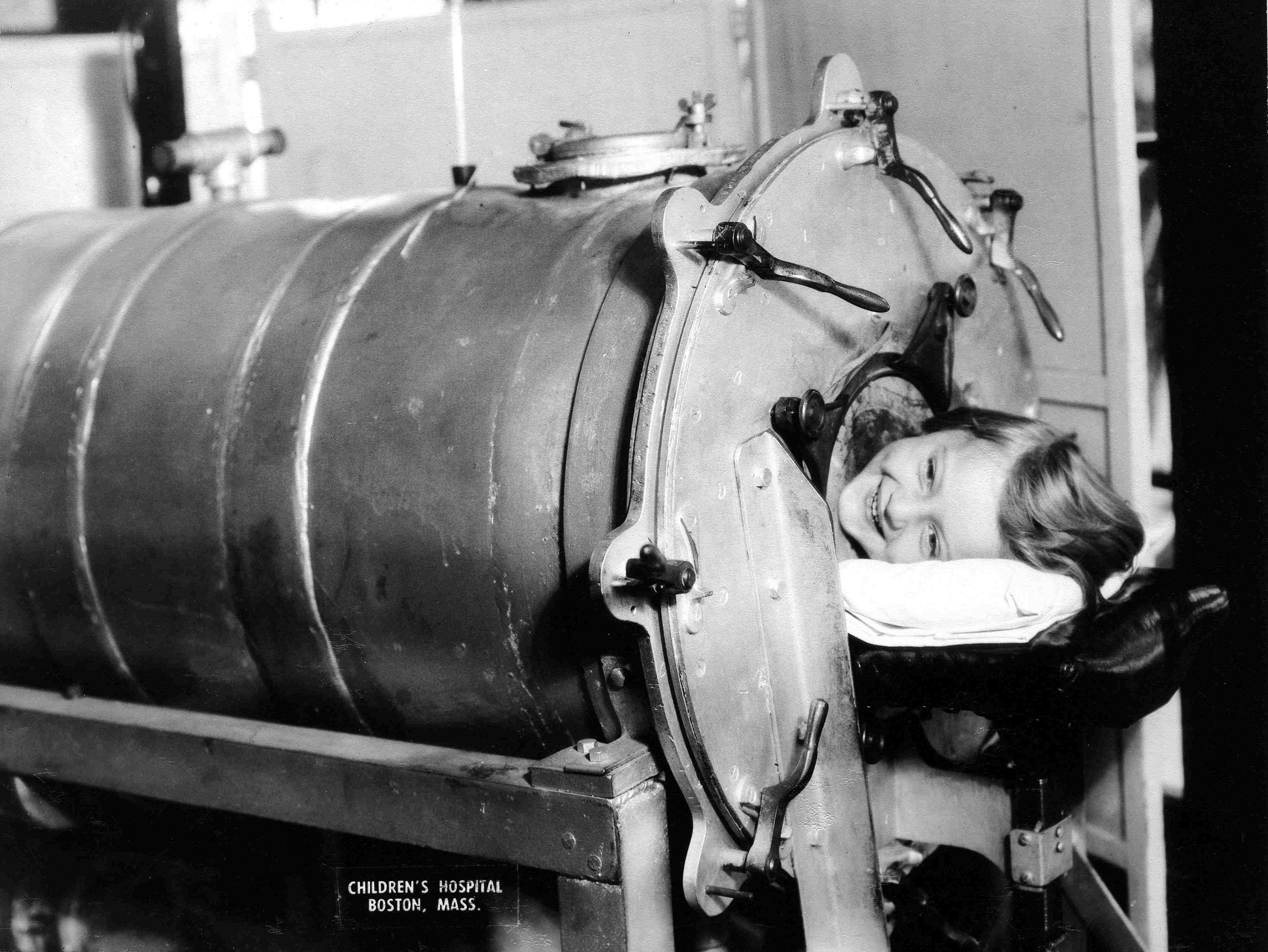 Many polio victims couldn't breathe on their own because of paralysis in their chest muscles. The iron lung -- a simple, air-tight chamber that regulates air pressure -- kept patients breathing until the paralysis passed. At the peak of the epidemic, rows of iron lung ventilators filled hospital rooms.