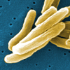 Under the microscope, Mycobacterium tuberculosis bacteria. The germs that cause TB have become resistant to many drugs.