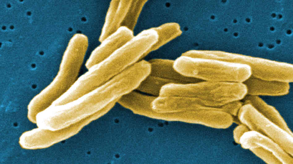 Under the microscope mycobacterium tuberculosis bacteria the germs
