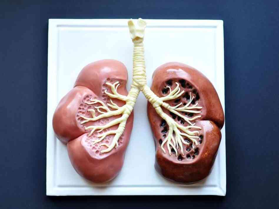 Lung Cancer Warning: A cake by Sarah Hardy Cakes in London juxtaposes a healthy lung with that of a smoker.