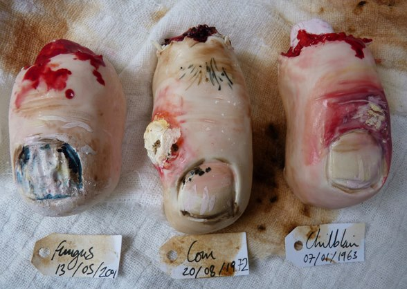 Toe nail cookies by Nevie Pie Cakes depict three unfortunate toe ailments: a fungal infection, corns, and chilblain.