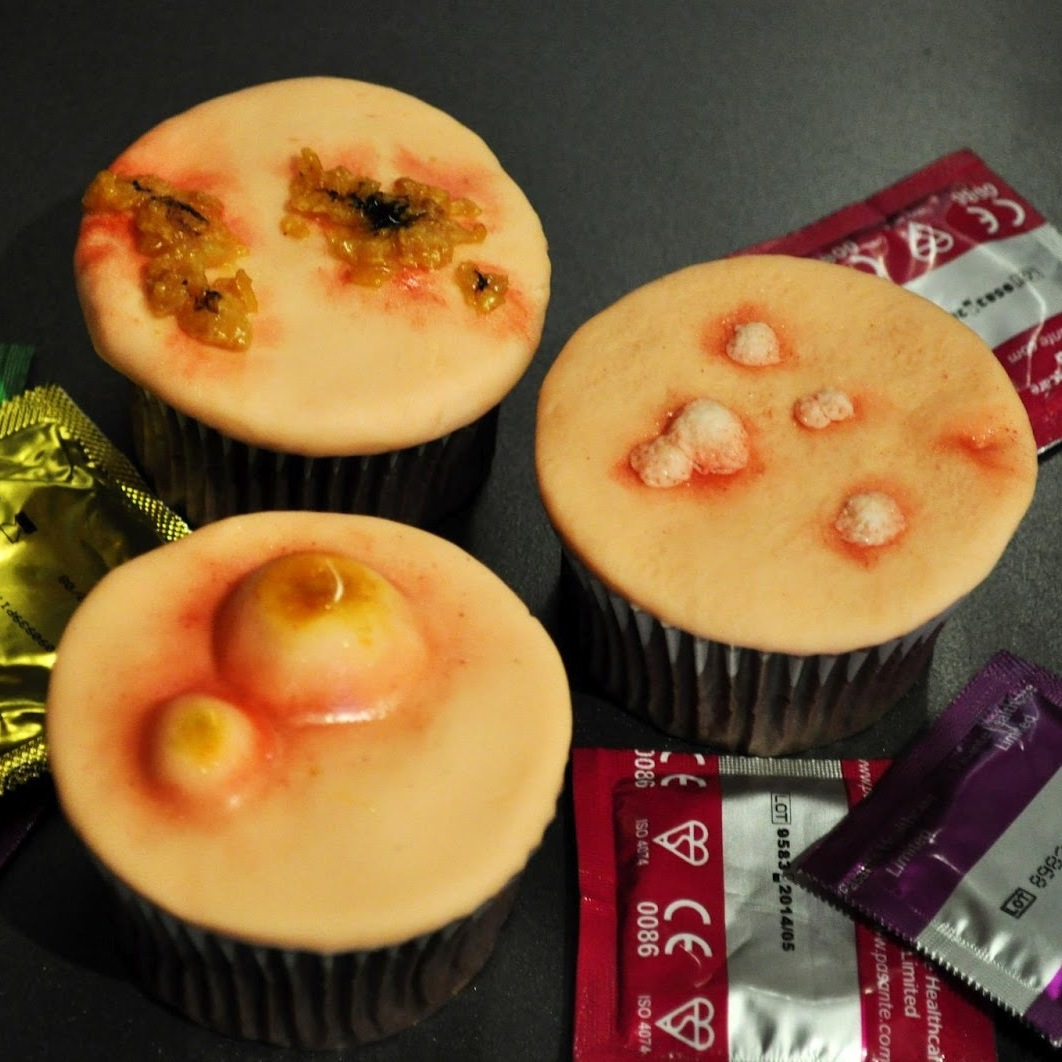 STD cupcakes: From Two Little Cats Bakery in Cambridge & Hertfordshire, these chocolate cupcakes feature symptoms of sexually transmitted diseases, including gonorrhea, syphilis, genital warts, chlamydia and HIV.