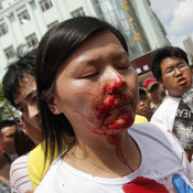 A bloodied woman is helped by demonstrators after clashes with police in a protest against an industrial waste pipeline in Qidong, Jiangsu province, on July 28. The Chinese government devotes enormous resources to suppressing dissent, but opposition to government policies is increasingly common.
