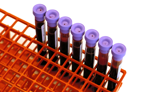 Before filling one of these tubes with blood for a cholesterol test, you're supposed to keep your stomach empty. But that may not be necessary. (iStockphoto.com)