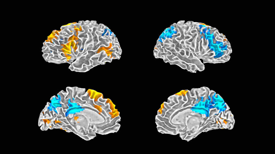 The warmer orange colors show parts of the brain most active during improvisational rap. The blue regions are most active when rappers performed a memorized piece.