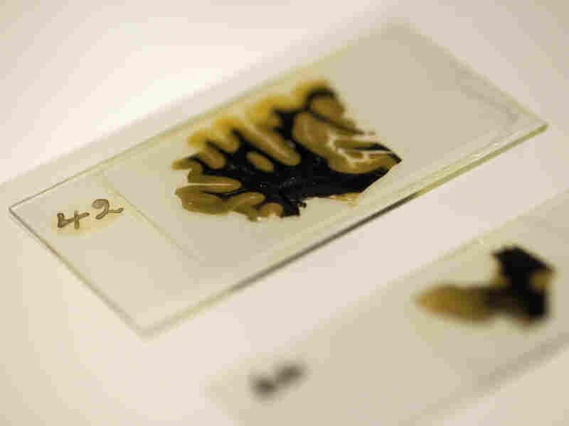 Thin slices of Einstein's brain were preserved on slides prepared by lab technician Marthe Keller in 1955.