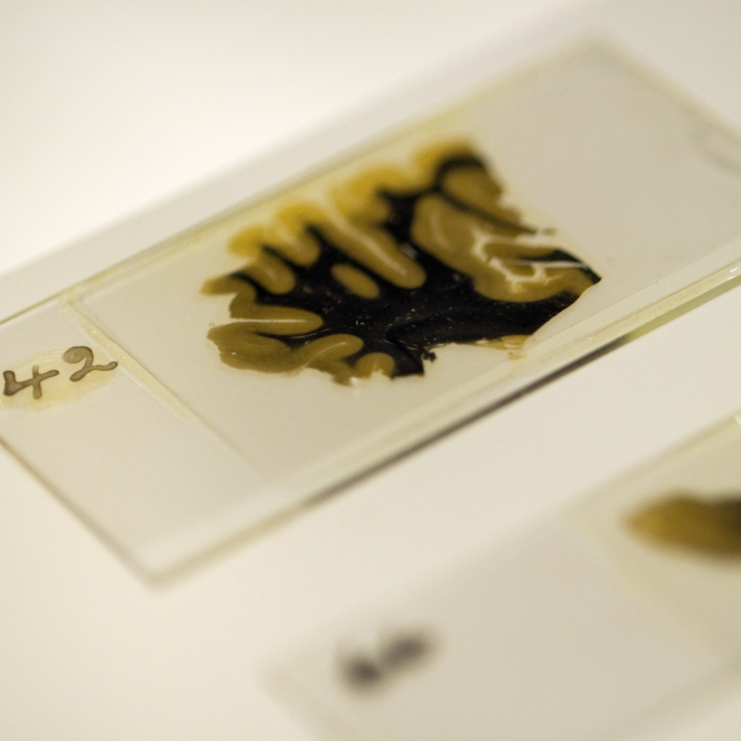 Thin slices of Einstein's brain were preserved on slides prepared by lab technician Marthe Keller in 1955.