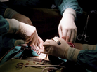 Researchers find that more than 40 percent of surgical complications happen after patients leave the hospital.