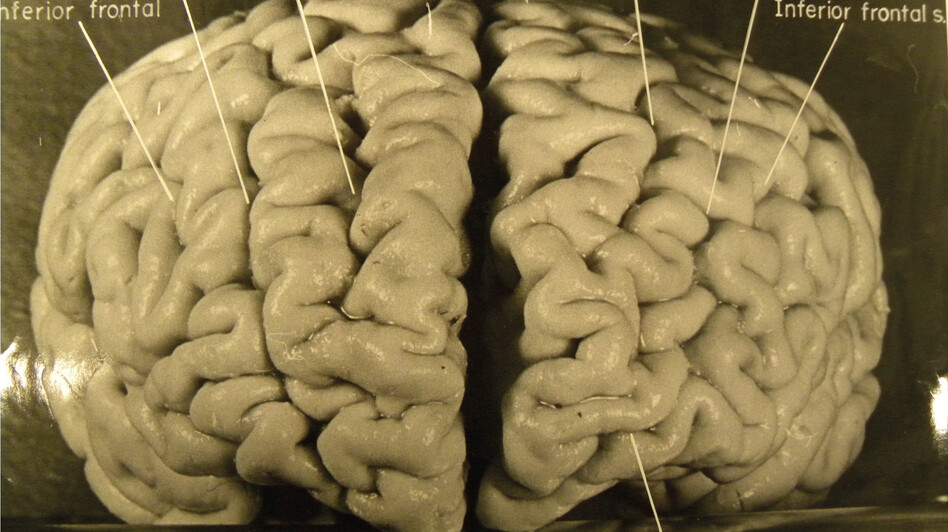 Pathologist Thomas Harvey took dozens of photos of Einstein's brain. This one shows that Einstein's prefrontal cortex (associated with higher cognition and memory) is unusually convoluted. On the right side of the brain there are four large ridges, where most people have only three. (Brain(2012)/National Museum of Health and Medicine)