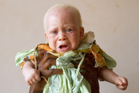 Abdulswamad, 7 months, was brought to the center by his mother, who was afraid they would be attacked.