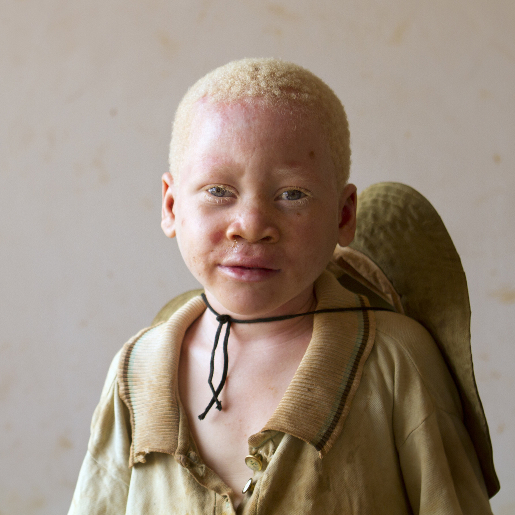 Musa, age unknown, was abandoned at the center. He is believed to be from the region bordering Burundi, where a black market in body parts of albinos is thriving.