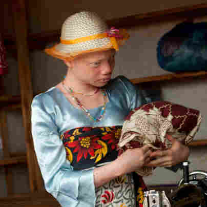 Tanzania's Albinos Face Constant Threat Of Attack