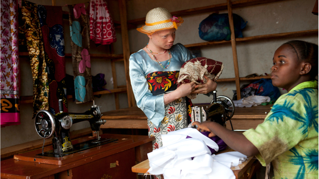Angel Salvatory, 17, buys cloth at a market in Kabanga village in Tanzania. Albinos living in a nearby protection center are allowed to go to the local market as long as they travel in a group for their own safety. (Jacquelyn Martin for NPR)