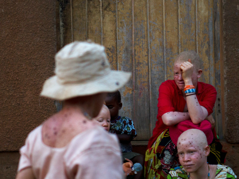 Albino women gather to be counted by armed police, for their own protection, as dusk approaches in Kabanga village.