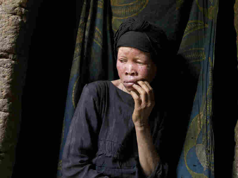 Mwatatu Musa, 45, was abandoned by her husband and now lives in a one room hut in Kakonko, Tanzania. As a young woman she was raped by men, who she thinks victimized her because she has albinism.