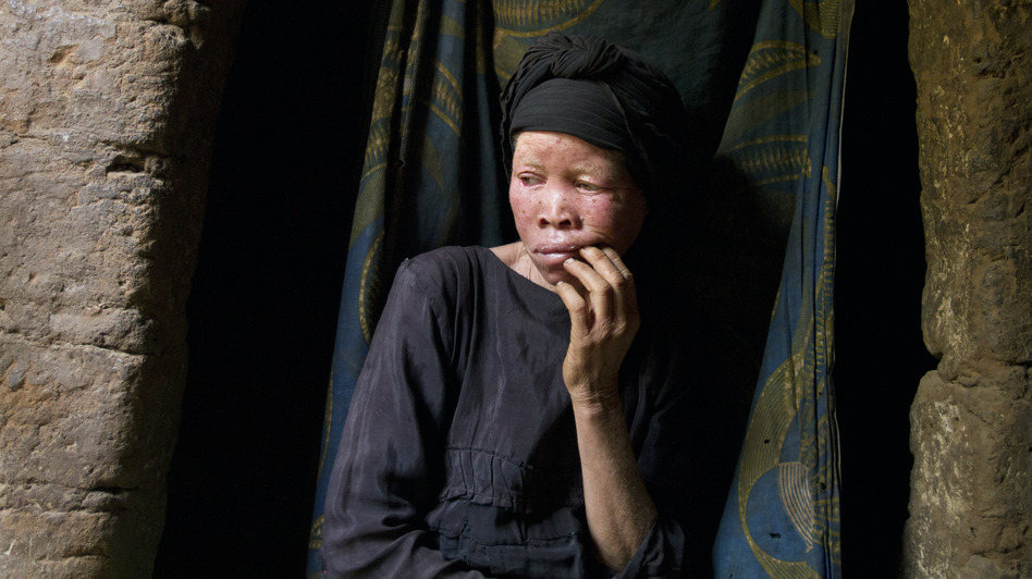Mwatatu Musa, 45, was abandoned by her husband and now lives in a one room hut in Kakonko, Tanzania. As a young woman she was raped by men, who she thinks victimized her because she has albinism. (Jacquelyn Martin for NPR)