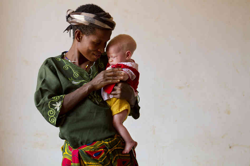 "Helen Sekalima, 40, with her baby, Jessica, two months old, at the Kabanga Protectorate Center. Of Helen's nine children, three of them have albinism. ""The people in the village said that the children are not normal people, that they are like devils,"" she said. Her husband was attacked protecting their oldest son from attackers, and now has limited mobility in his arm."
