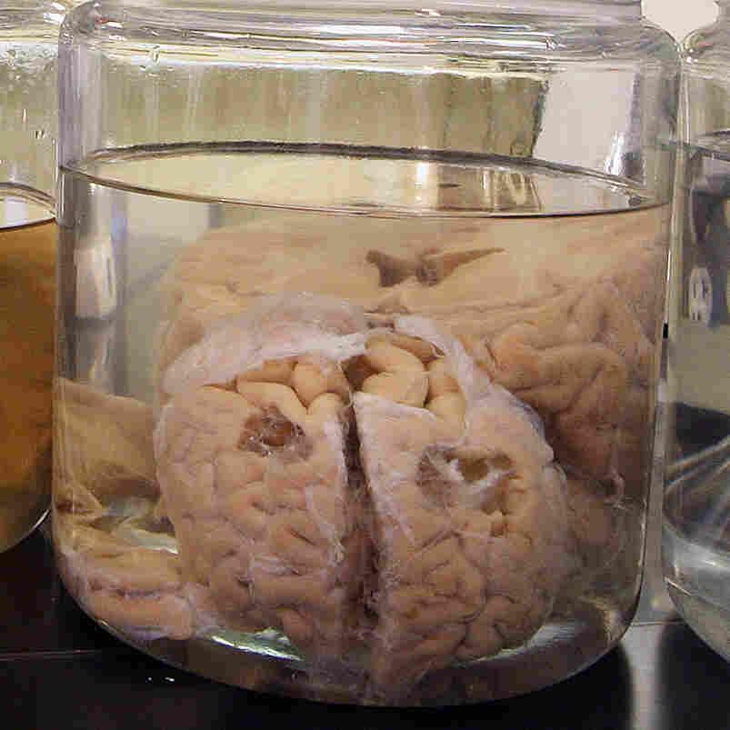 Evidence Mounts Linking Head Hits To Permanent Brain Injury