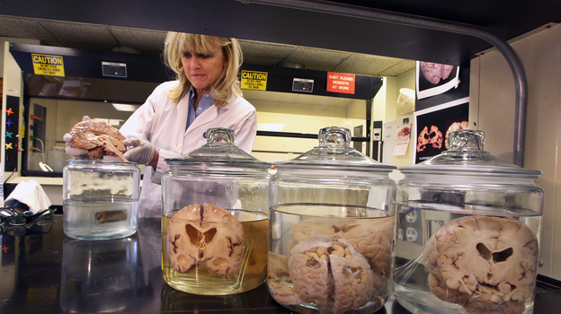 Dr. Ann McKee, professor of neurology and pathology of Boston University School of Medicine and co-director of the Veterans Affairs Center for the Study of Traumatic Encephalopathy, inspects a brain in the Bedford Veteran Medical Center last year. (Boston Globe via Getty Images)