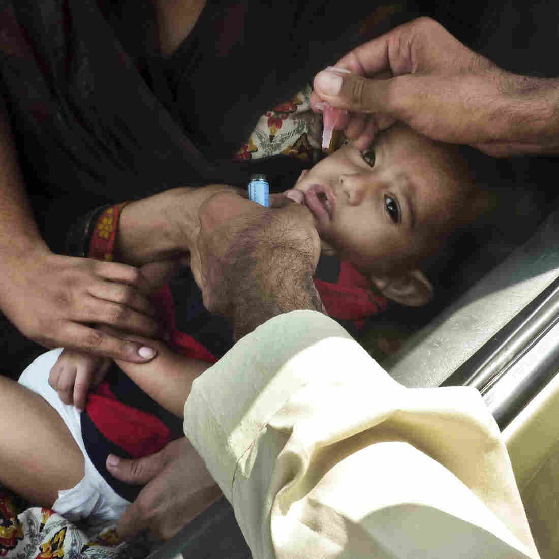 A Polio Outbreak In Pakistan Reveals Gaps In Vaccination