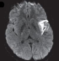 Another MRI of the woman's brain showed signs of a stroke in a region involved with language.