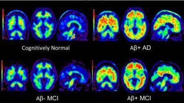 Brain scans using Amyvid dye to highlight beta-amyloid plaques in the brain. Clockwise from top left: a cognitively normal subject; an amyloid-positive patient with Alzheimer's disease; a patient with mild cognitive impairment who progressed to dementia during a study; and a patient with mild cognitive impairment. (Slide courtesy of the journal Neurology)