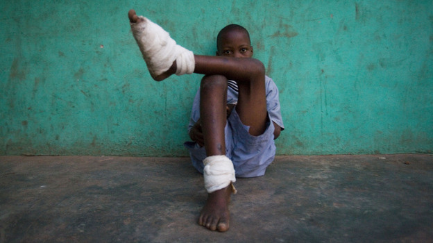A boy with multiple Guinea worms sits outside a containment center in northern Ghana, February 2007. (Chicago Tribune/MCT /Landov)