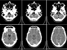 Doctors' use of CT head scans for hospitalized patients didn't change when the prices were revealed at the time an order was being made.