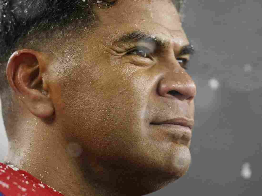 The brain of former NFL star Junior Seau, who committed suicide last year, showed signs of the kind of neurodegenerative disease associated with repetitive head trauma.